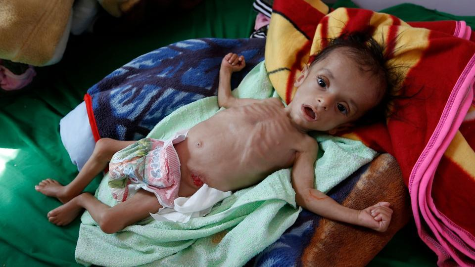 Yemeni children dying of starvation because of the West war crimes.